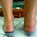 How does rheumatoid arthritis affect the ankles?