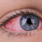 Inflammation of the Eye Caused by Gut Microbes