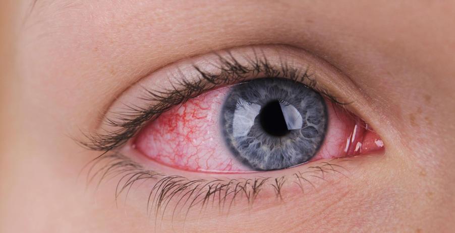 woman's eye with iritis