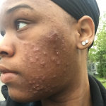 'Skin positivity' confronts acne stigma