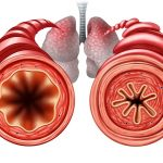 Lung Function in Asthma Improves With Add-On Tiotropium