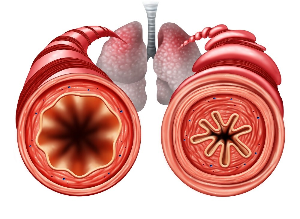 Regardless of immunoglobulin E levels and blood eosinophil counts, add-on tiotropium improved lung function compared with placebo.
