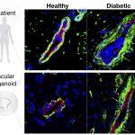 Scientists grow perfect human blood vessels in a petri dish