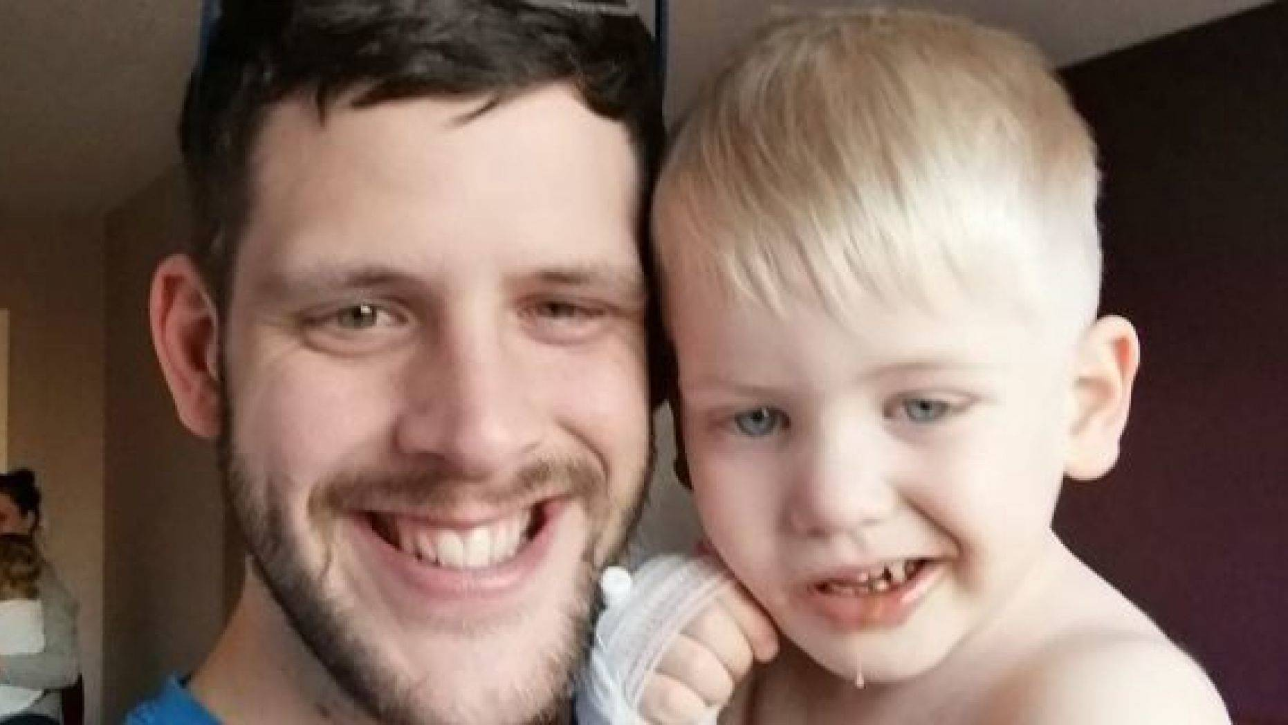 Wesley Lacey, 28, with his son Jack, said that they initially believed the boy's crooked smile was an imitation of someone else.