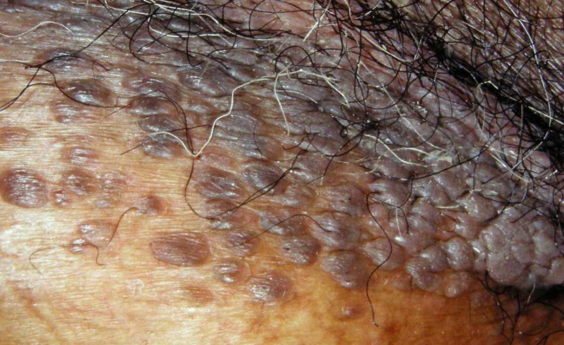 Genital warts. Image credit: DermNet New Zealand