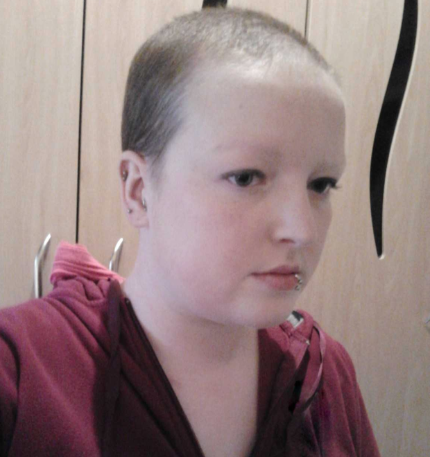 Rebecca began to lose her hair two weeks into treatment