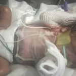 Texas baby born without skin getting grafts grown from own cells, family says